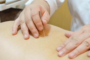 つきのわ鍼灸院の鍼での治療